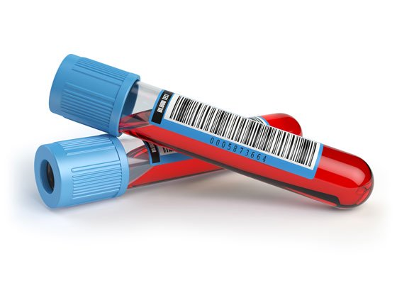 Correctly Labelled Barcoded Blood Sample Tube For Analysis
